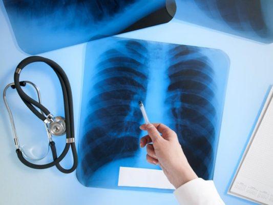 «Всемирное обязательство – ликвидировать туберкулез – это задача выполнима»